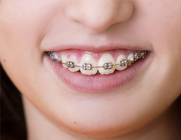 Ortodontik tedavide diş çekilebilir mi?