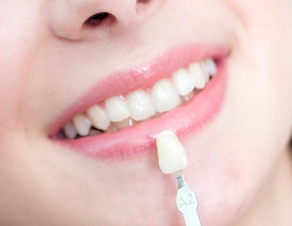 Lamina diş tedavisi